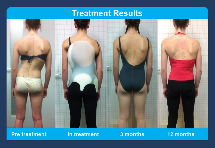 treatment_results